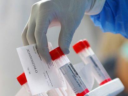 193 са новите случаи на коронавирус у нас